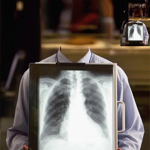 Шаблон мужской - Человек и быстрый рентген