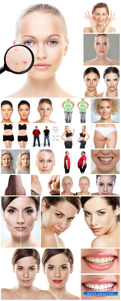 Before and after, beauty and body care - stock photos